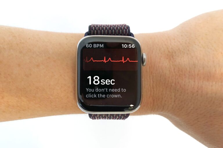 Apple Watch may have saved the life of a 79-year-old with heart condition